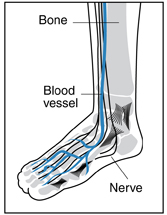 Drawing of a foot and ankle showing bones, blood vessels, and nerves inside. A bone, a blood vessel, and a nerve are labeled.